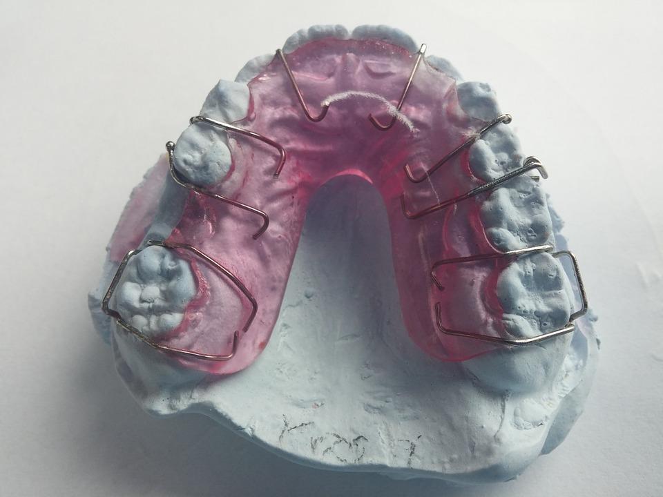 Faux palais Appareils dentaires amovibles