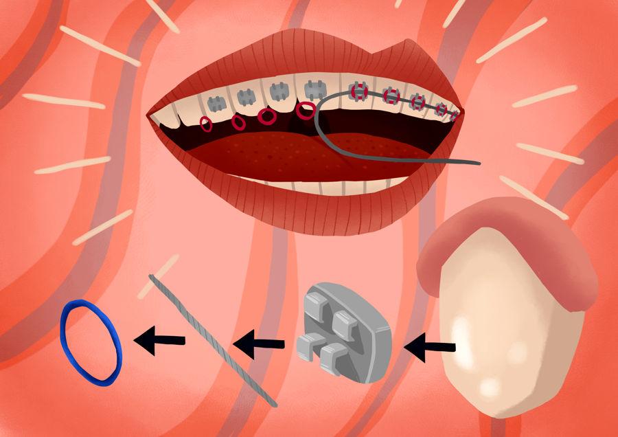 Processus de retrait de bagues dentaires