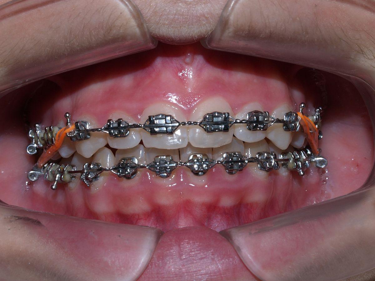 appareillages orthodontiques fixes brackets métalliques