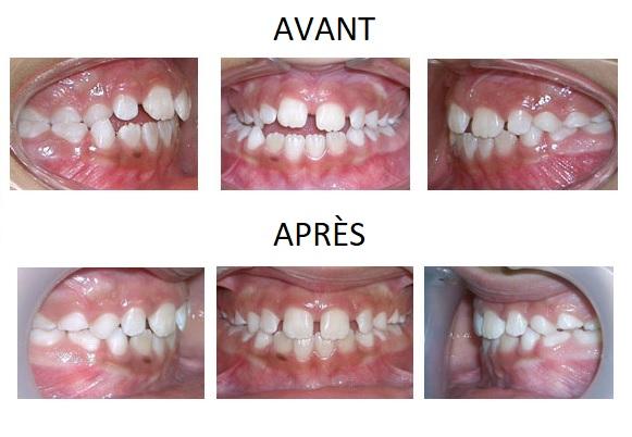 8-12 ans traitements orthodontie paris