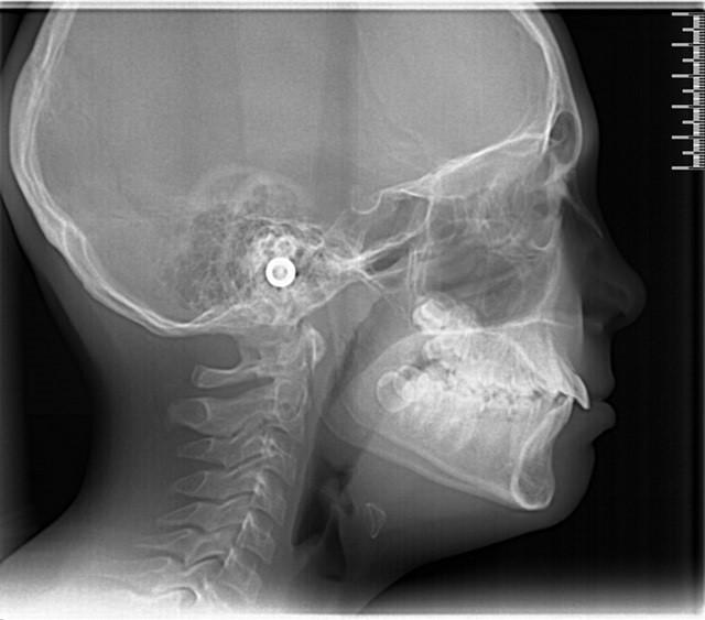 téléradiographie de profil - bilan orthodontique