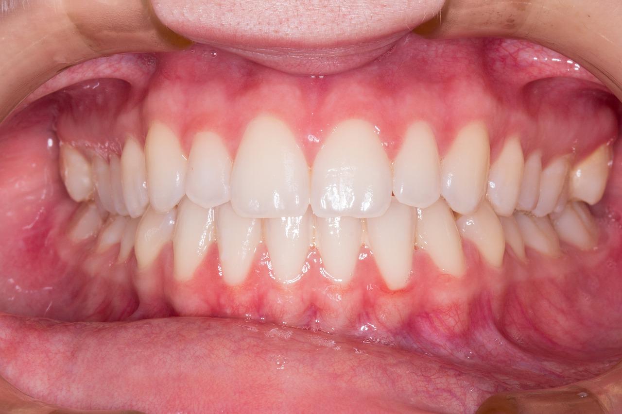 Dents mal alignées et problèmes de santé