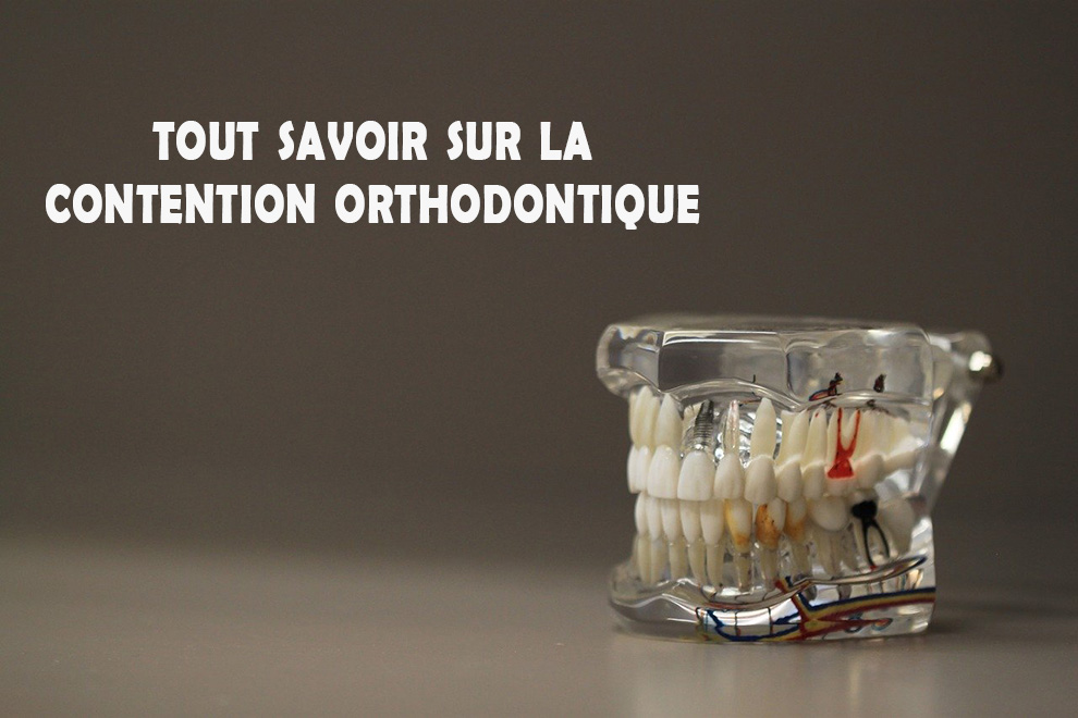 contention orthodontie