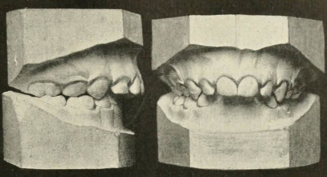 Déviation dentaire
