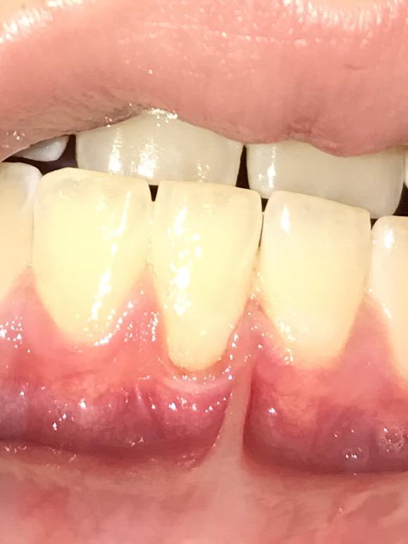 malocclusion dents du haut reculées