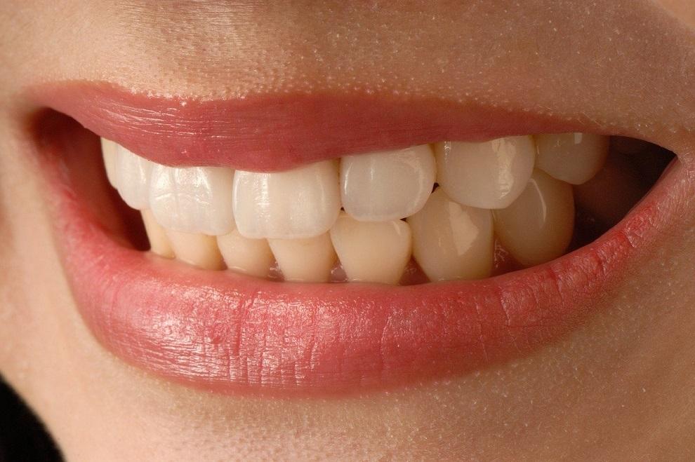 Supraclusion dentaire causes consequences et traitements orthodontiques